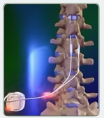 pic-spinal-cord-stimulation