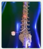 pic-spinal-cord-stimulation2